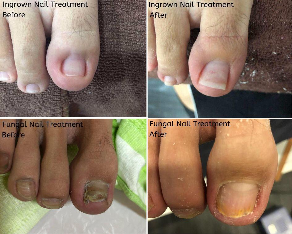 Ingrown Toenail Treatment Without Surgery Singapore